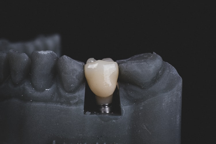 tooth lluminated