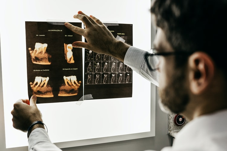 Dental tooth scan